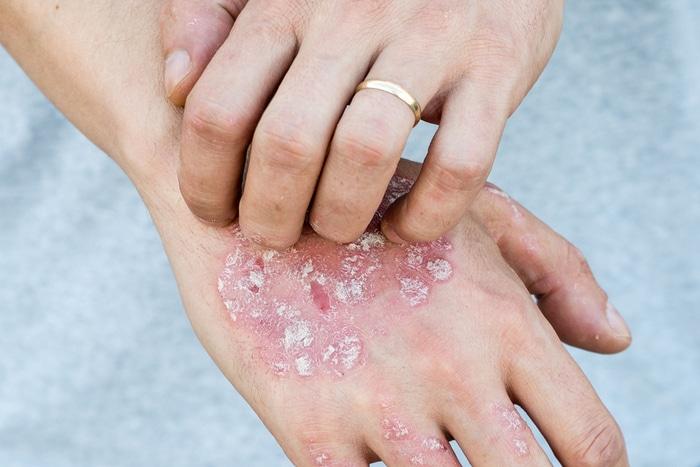 Лечение Псориаза В Запорожье