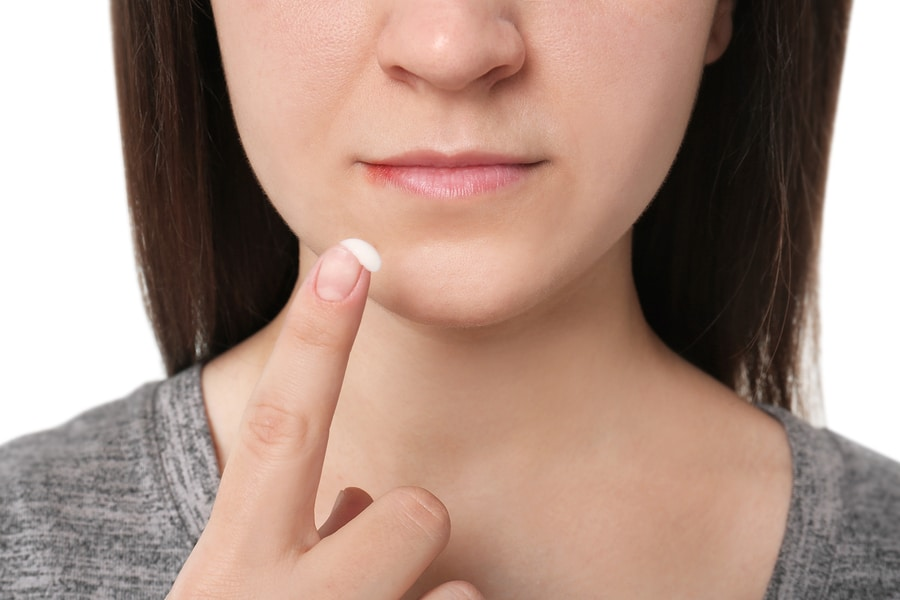 Cure Cold Sores