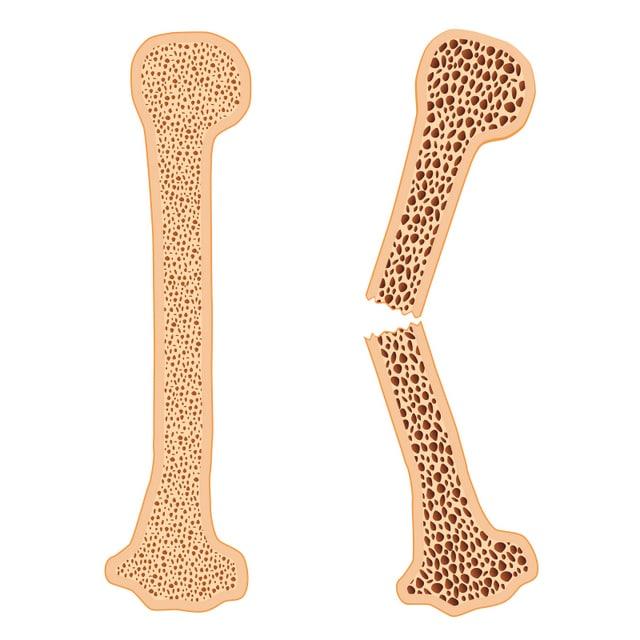 Fractures of Bones: